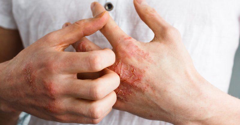 ¿Puede mejorar la cirugía bariátrica la psoriasis?